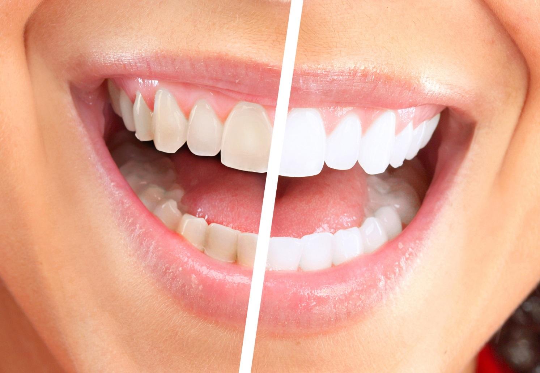 чем безопасно отбелить зубы дома